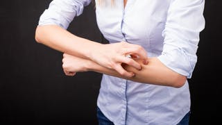 Urticaire chronique: que faire?