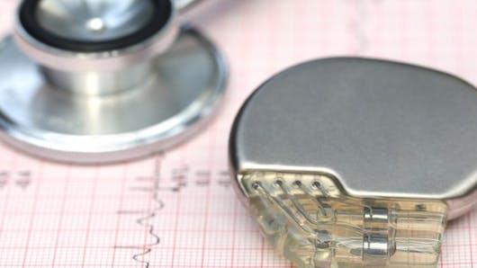Pacemaker: comment marche ce stimulateur cardiaque?