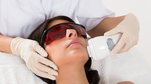 Epilation laser du visage ou épilation électrique du visage?