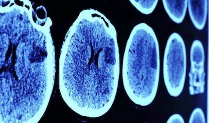 La créativité liée à une meilleure connexion dans les régions du cerveau