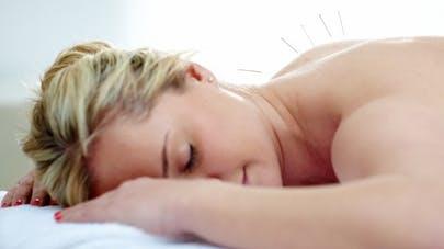 Migraine: tester l'acupuncture pour réduire les symptômes