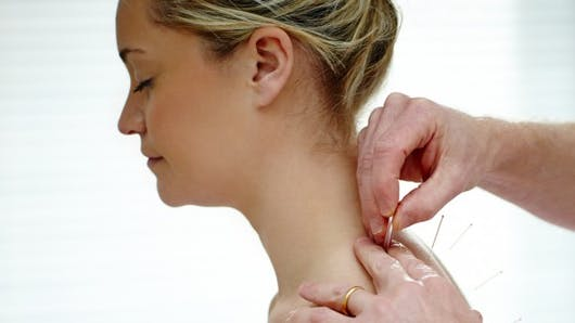 L'acupuncture, un traitement naturel des bouffées de chaleur