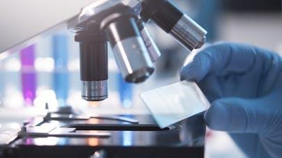 VIH: une nouvelle piste pour éliminer le virus