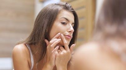 5 raisons qui expliquent une poussée d'acné chez l'adulte