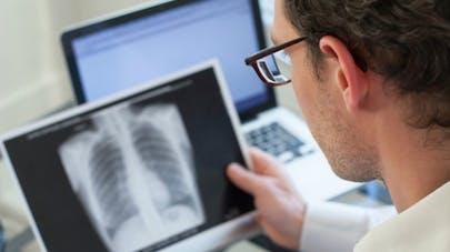 Journée mondiale de lutte contre la tuberculose: la France est-elle concernée?