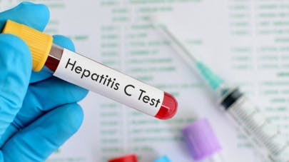 Hépatite C: le médicament sofosbuvir dans la ligne de mire de Médecins Sans Frontières