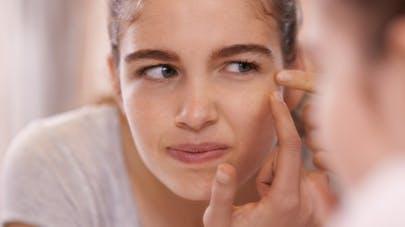 6b00c5204d32 Contraception   quelle est l influence de la pilule sur l acné ...