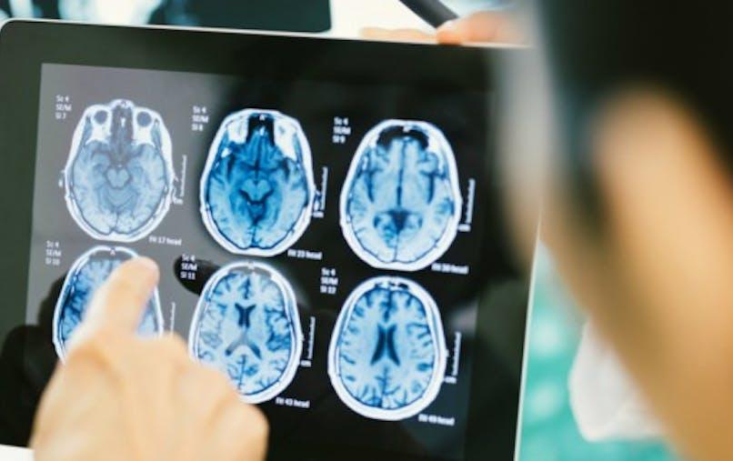 A faibles doses, le LSD peut-il être bénéfique pour le cerveau?