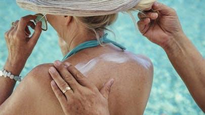 Crème solaire: 5 zones à ne pas oublier
