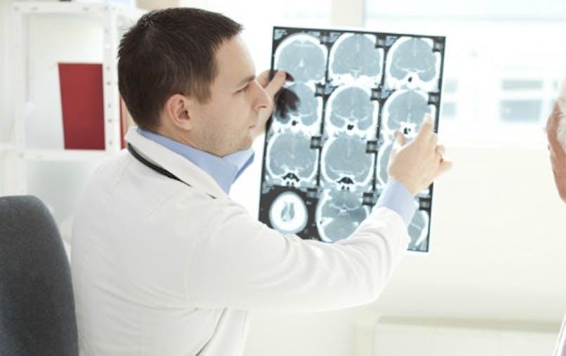Sclérose en plaques: comment expliquer la dégénérescence des neurones?