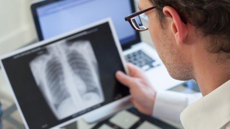 Tuberculose: doit-on revenir à une vaccination obligatoire?