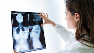 5 petits gestes pour prévenir le cancer du sein