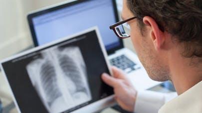 Voir ses poumons au scanner incite à arrêter de fumer