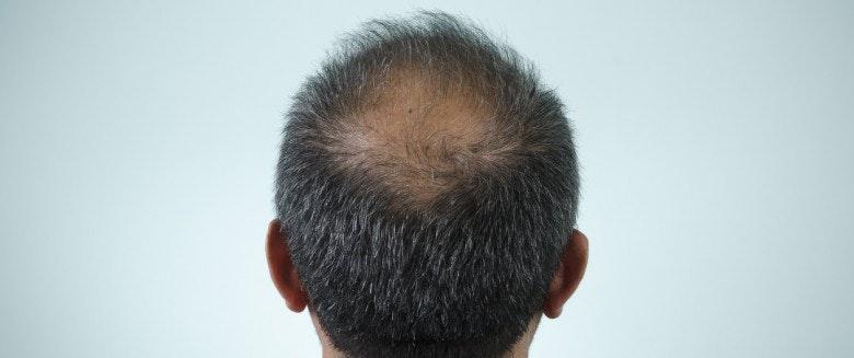 remede naturel pour chute de cheveux femme