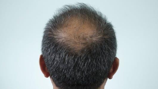 4 mythes sur la perte de cheveux