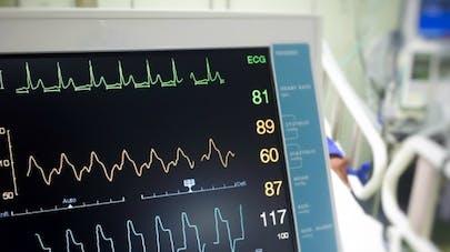 Un moniteur cardiaque connecté à un smartphone mis au point au CHRU de Lille