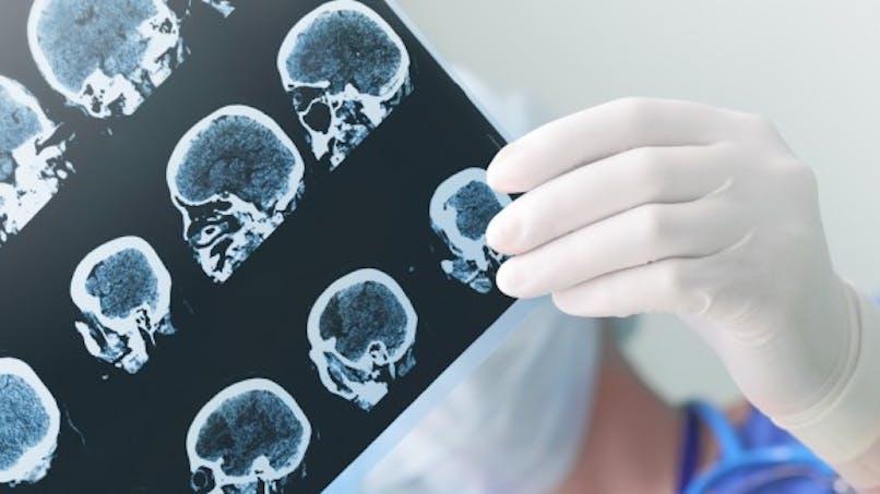 Parkinson: un nouveau traitement qui donne de l'espoir