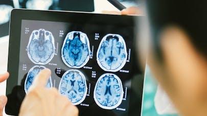 Maladie de Parkinson: la piste d'un médicament contre l'asthme