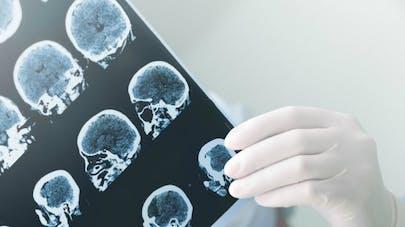 La maladie d'Alzheimer en sept questions
