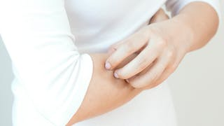 Symptômes du zona: comment reconnaître cette maladie virale