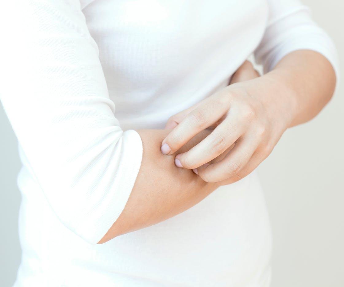 Symptômes du zona : comment reconnaître cette maladie virale ...