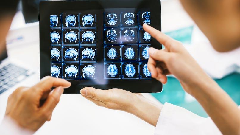 IRM cérébrale: 5 choses à savoir