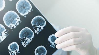Maladie d'Alzheimer: les avantages de la tomographie par émission de positrons