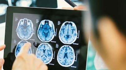 """Le cerveau peut se """"muscler"""" pour de meilleures performances cognitives"""