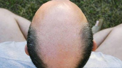 Chute de cheveux: le médicament Propecia favoriserait la dépression