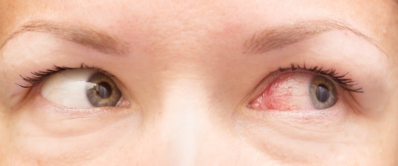 soigner les yeux rouges