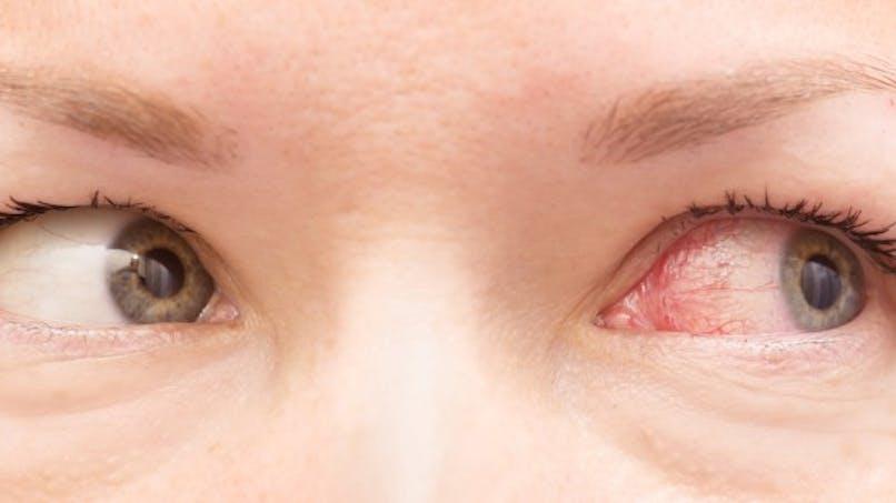 6 raisons qui expliquent les yeux rouges