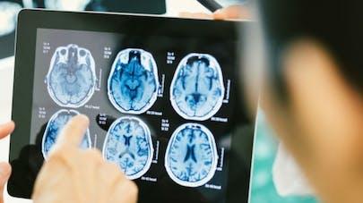 Cerveau: des images vues pendant quelques secondes, reconnues une dizaine d'années plus tard