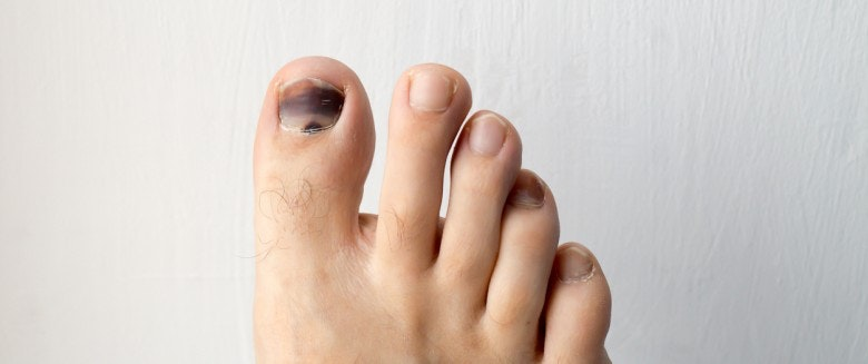 tache noir ongle de pied