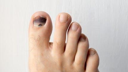 Comment soigner un ongle noir