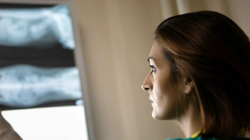 Les radiologues peuvent détecter les formes de blessures liées à la violence conjugale