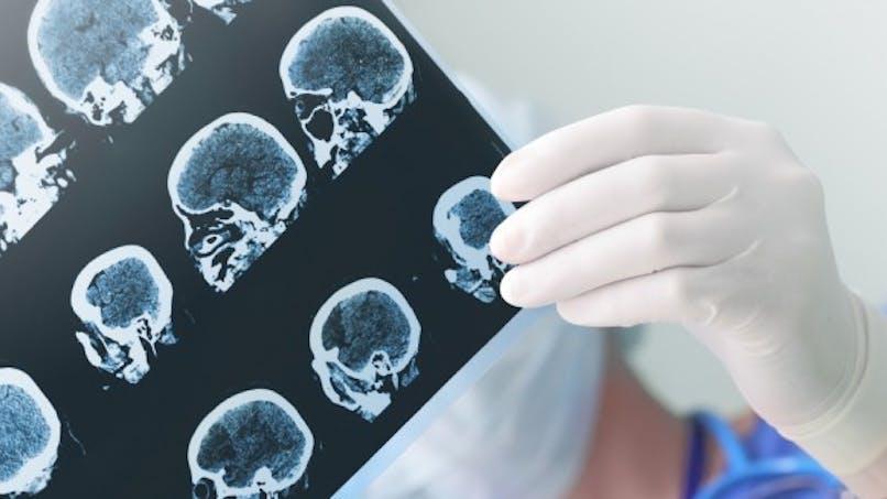 Détecter Alzheimer grâce à une technique non invasive