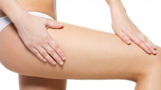 cellulite et alimentation