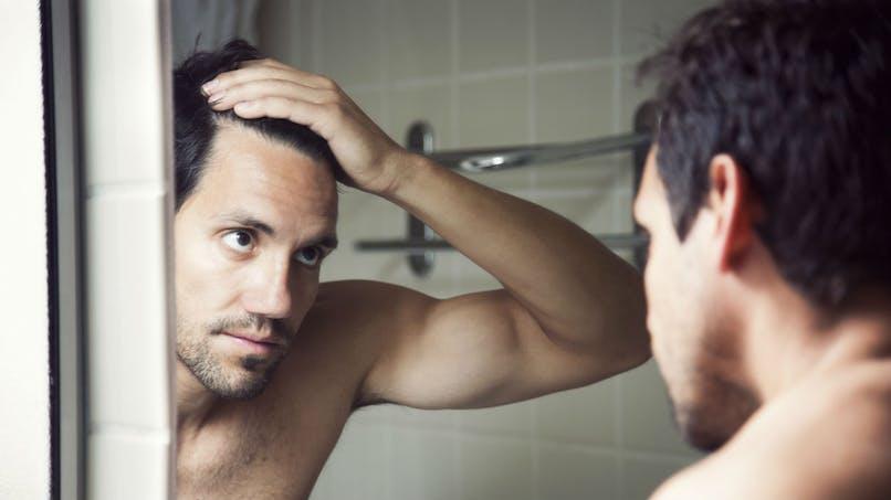 Calvitie: des chercheurs ont trouvé comment régénérer des cheveux