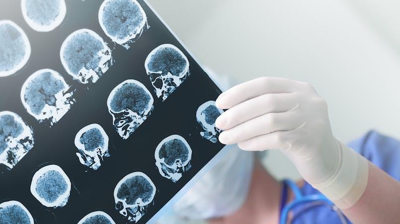 Epilepsie : l'analyse des ondes cérébrales, un espoir pour les malades