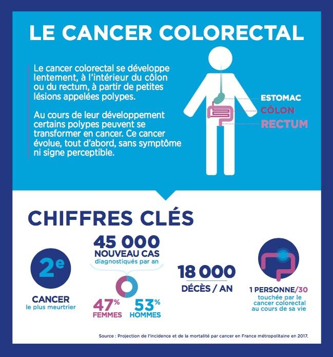 Cancer du côlon, le deuxième cancer le plus meurtrier