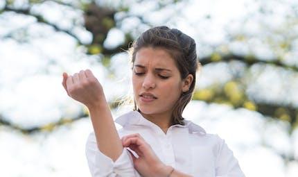 Tests d'allergie : comment se déroulent ces tests cutanés ?