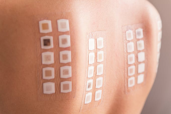 Patch test, test allergie