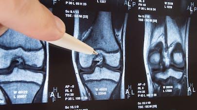Polyarthrite rhumatoïde : une technique d'imagerie pour la diagnostiquer plus vite