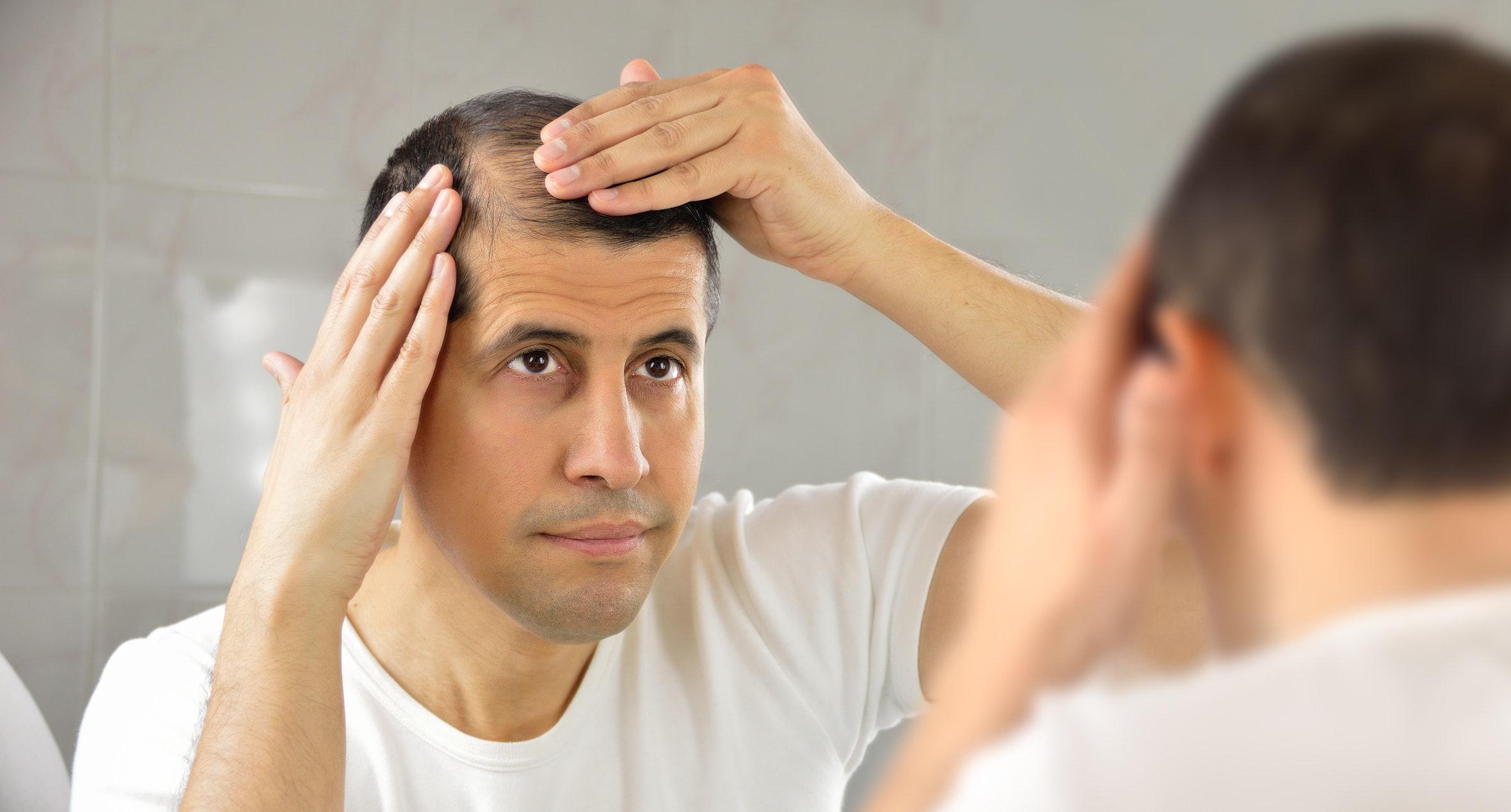 l obésité peut causer la perte de cheveux