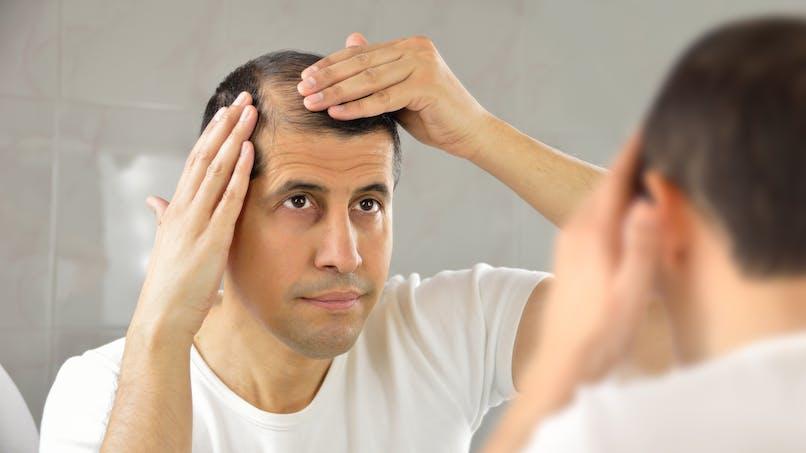 Perte de cheveux : les bactéries intestinales pourraient être en cause