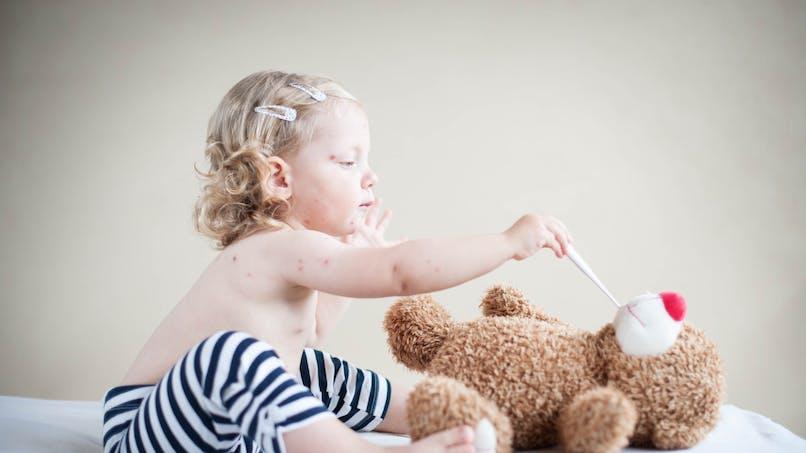 Soigner la varicelle chez l'enfant en évitant les cicatrices