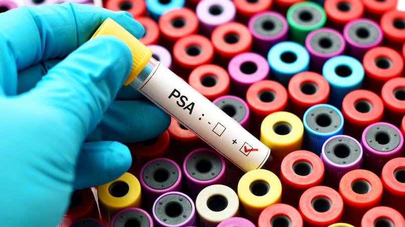 Le cancer de la prostate diagnostiqué avec une simple prise de sang?