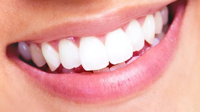 Bucco Dentaire santé gencives dents
