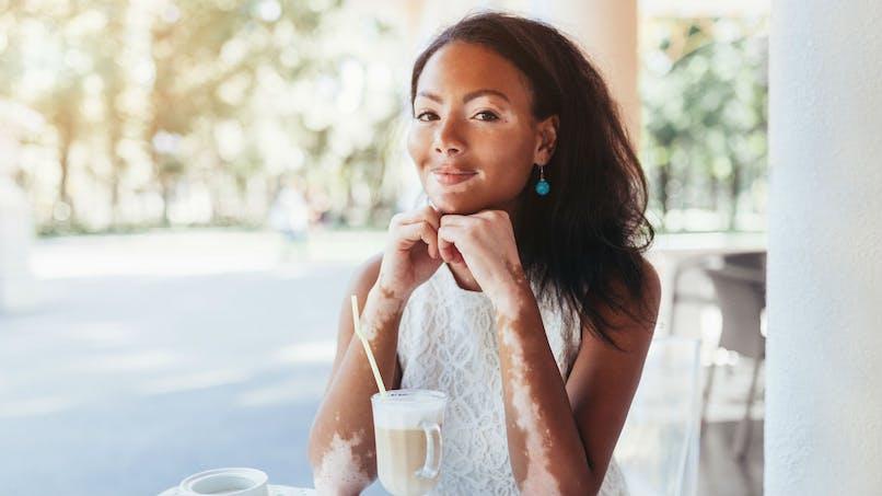 Vitiligo et soleil: comment se protéger en été?
