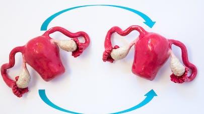 Naissance du 1er bébé issu d'une greffe d'utérus entre jumelles
